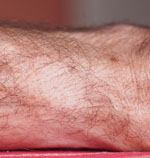 forearm-shaved