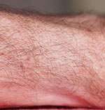 forearm-unshaved